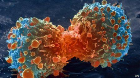 _83307904_m1320644-lung_cancer_cell_division_sem-spl